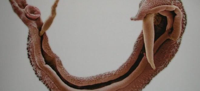 Разновидности глистов, которые поражают мочевой пузырь человека