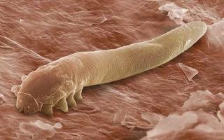Какие бывают кожные паразиты у человека