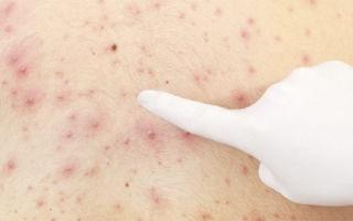 Почему при лямблиях появляется сыпь на коже