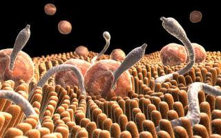 Это можно лечить дома: избавляемся от паразитов в организме