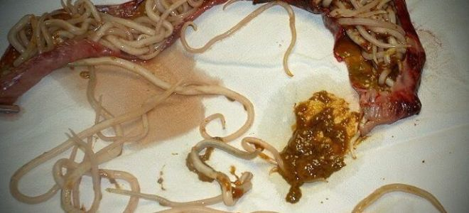 Как выходят паразиты из организма человека