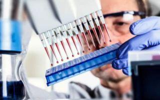 Можно ли по анализам крови диагностировать лямблиоз
