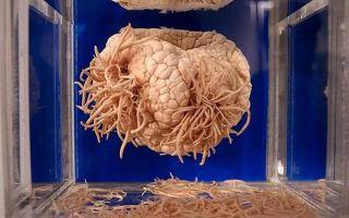 Как называются глисты, которые могут жить в теле человека