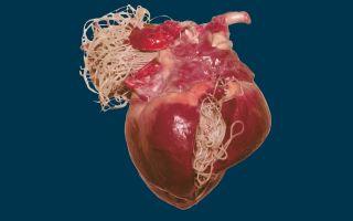 Глист любит проживать в сердце человека