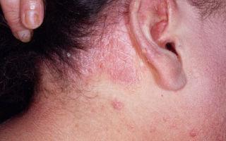 Особенности лечения демодекоза волосистой части головы