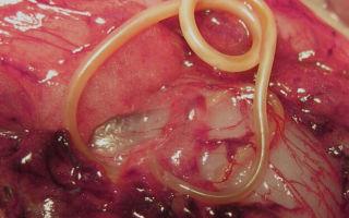 В каком мясе больше всего паразитов?