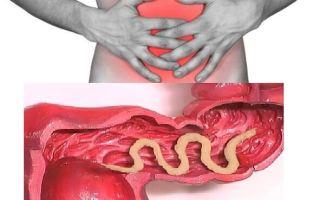 Поражение толстого отдела кишечника глистами