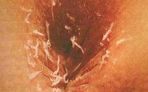 Почему возникает зуд в области ануса?