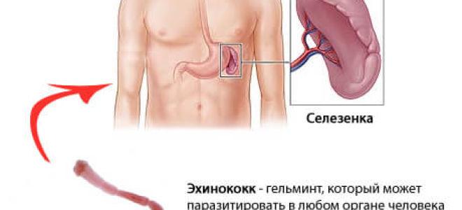 Что важно знать об эхинококкозе у человека