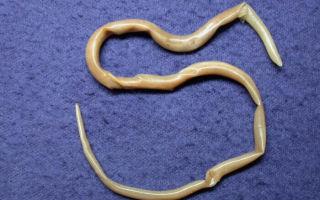 Какие паразиты могут жить в легких человека