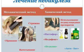 Методы лечения педикулеза