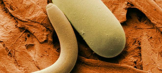 Энтеробиоз у детей: симптомы, лечение и профилактика