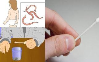 Правила сдачи анализов на гельминтов