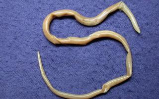 Яйца гельминтов в кале и маленькие белые червячки у ребенка