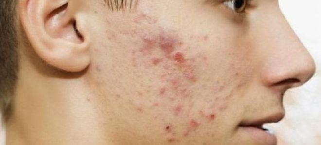 Избавление от гельминтоза позволяет справиться с кожными высыпаниями