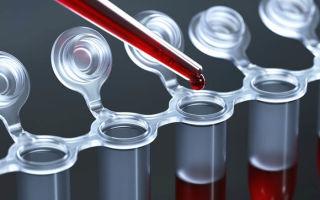 Диагностика и подробная расшифровка анализа на аскаридоз