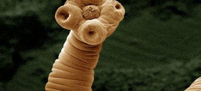 Какие паразиты могут поселиться в голове у человека