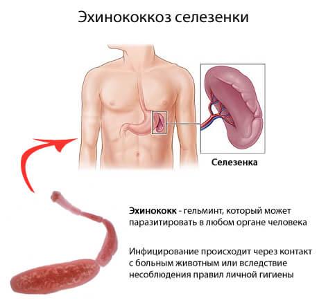 Эхинококкоз: симптомы у человека, лечение и диагностика
