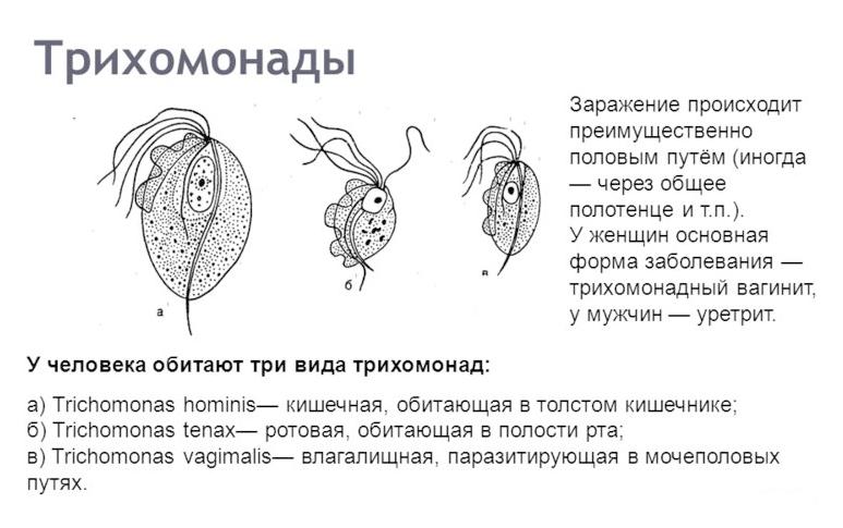Трихомониаз симптомы у женщин и мужчин, лечение, профилактика