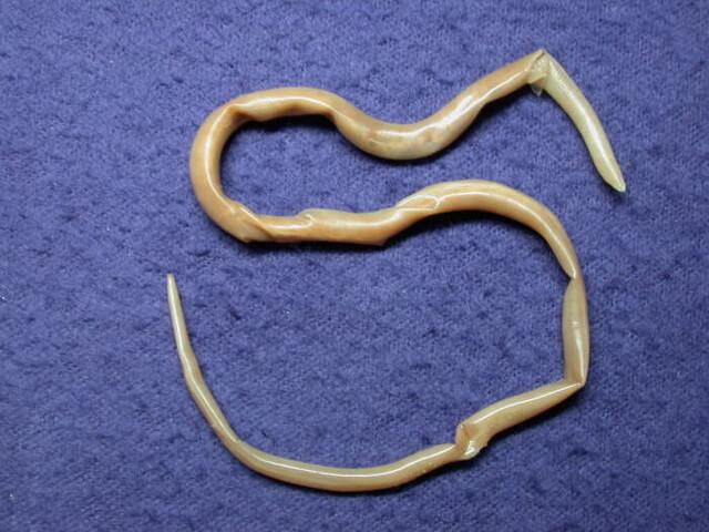 Личинки гельминтов в кале фото