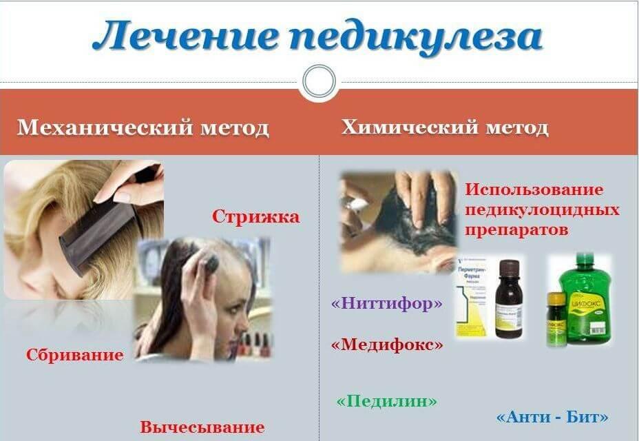 Лечение педикулеза