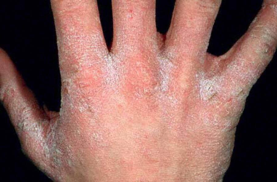 Зараженная рука