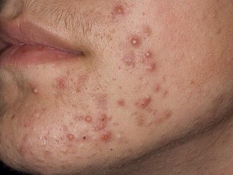 Соскоб кожи на демодекс: подготовка к анализу на клеща с лица и ресниц