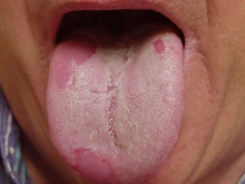 Трихомониаз хламидиоз симптомы у женщин -