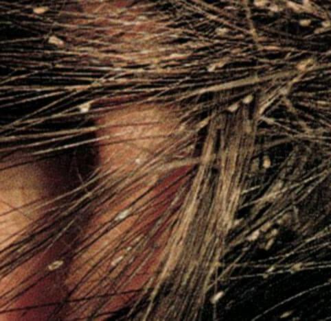 Зараженные волосы
