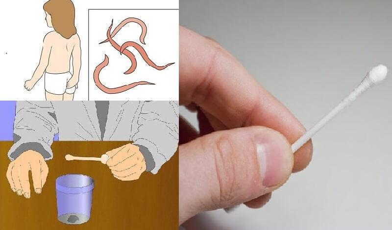 Как обследоваться на паразитов